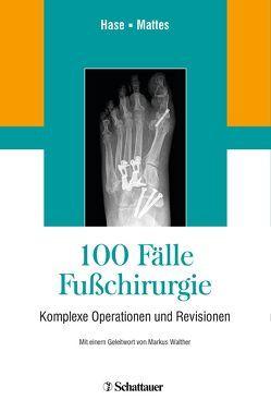 100 Fälle Fußchirurgie von Frank,  Mattes, Hase,  Charlotte
