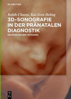 3D-Sonografie in der pränatalen Diagnostik von Chaoui,  Rabih, Heling,  Kai-Sven