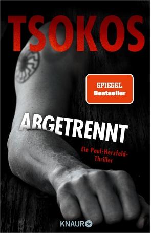 Abgetrennt (Herzfeld 3) von Tsokos,  Michael