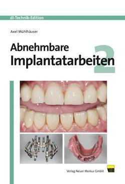 Abnehmbare Implantatarbeiten 2 von Mühlhäuser,  Axel