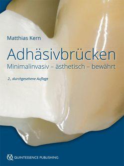 Adhäsivbrücken von Kern,  Matthias