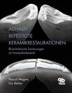 Adhäsiv befestigte Keramikrestaurationen im Frontzahnbereich von Belser,  Urs, Magne,  Pascal