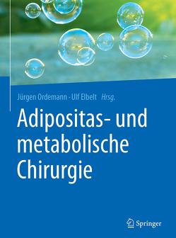 Adipositas- und metabolische Chirurgie von Elbelt,  Ulf, Ordemann,  Jürgen
