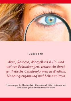 Akne, Rosacea, Morgellons & Co. und weitere Erkrankungen, verursacht durch synthetische Celluloseformen in Medizin, Nahrungsergänzung und Lebensmitteln von Ehle,  Claudia