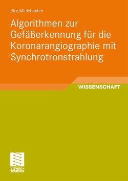 Algorithmen zur Gefäßerkennung für die Koronarangiographie mit Synchrotronstrahlung von Mielebacher,  Jörg