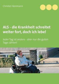 ALS – die Krankheit schreitet weiter fort, doch ich lebe! von Herrmann,  Christel