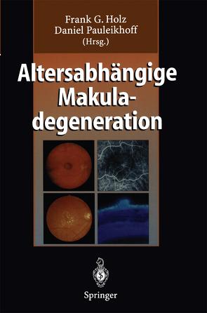 Altersabhängige Makuladegeneration von Holz,  Frank G., Pauleikhoff,  Daniel