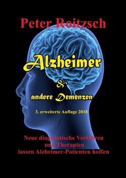 Alzheimer & andere Demenzen von Roitzsch (AHD),  Peter