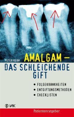 Amalgam – das schleichende Gift von Kern,  Peter