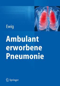 Ambulant erworbene Pneumonie von Ewig,  Santiago