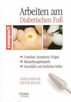 Arbeiten am Diabetischen Fuss von Itter,  Alexander, Krause,  Ingrid, Paul-Füssl,  Ingrid