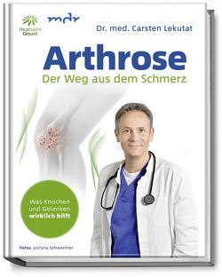Arthrose von Dr. med. Lekutat,  Carsten, Krzyzanowska,  Justyna