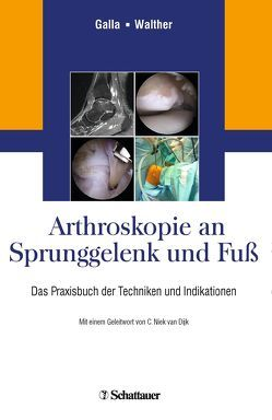 Arthroskopie an Sprunggelenk und Fuß von Galla,  Mellany, van Dijk,  C.Niek, Walther,  Markus