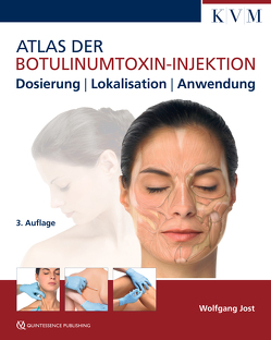 Atlas der Botulinumtoxin-Injektion von Jost,  Wolfgang