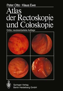Atlas der Rectoskopie und Coloskopie von Ewe,  K., Otto,  P.