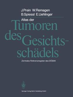 Atlas der Tumoren des Gesichtsschädels von Prein,  Joachim, Remagen,  W., Spiessl,  B., Uehlinger,  E.