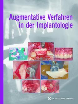 Augmentative Verfahren in der Implantologie von Khoury,  Fouad