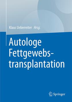 Autologe Fettgewebstransplantation von Ueberreiter,  Klaus