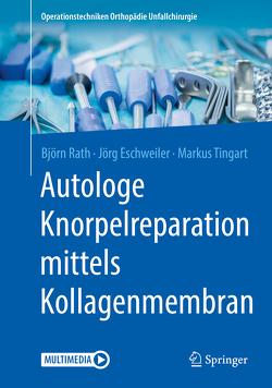 Autologe matrixinduzierte Chondrogenese (AMIC) von Eschweiler,  Jörg, Rath,  Björn, Tingart,  Markus