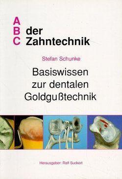 Basiswissen zur dentalen Goldgusstechnik von Lauer,  Hans Ch, Schunke,  Stefan, Suckert,  Ralf