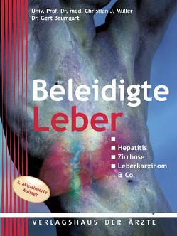 Beleidigte Leber von Baumgart,  Gert, Müller,  Christian J.
