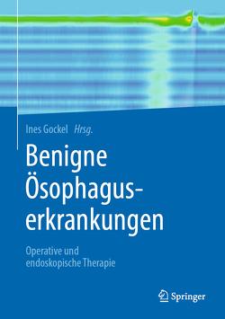 Benigne Ösophaguserkrankungen von Gockel,  Ines