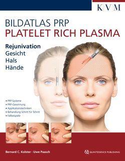 Bildatlas Kollageninduktion mit Platelet Rich Plasma (PRP) von Kolster,  Bernard, Paasch,  Uwe