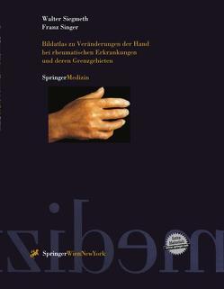 Bildatlas zu Veränderungen der Hand bei rheumatischen Erkrankungen und deren Grenzgebieten von Siegmeth,  Walter, Singer,  Franz