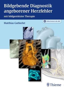 Bildgebende Diagnostik angeborener Herzfehler von Gutberlet,  Matthias