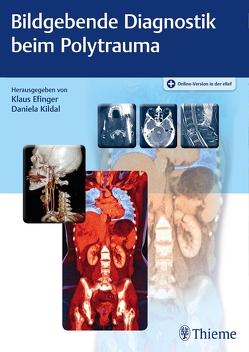 Bildgebende Diagnostik beim Polytrauma von Efinger,  Klaus, Kildal,  Daniela