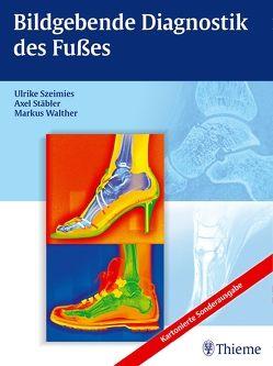 Bildgebende Diagnostik des Fußes von Stäbler,  Axel, Szeimies,  Ulrike, Walther,  Markus