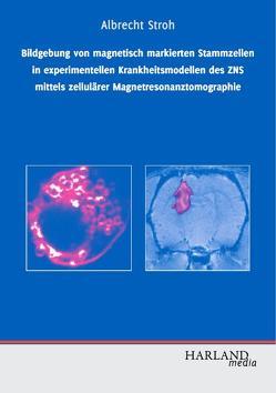 Bildgebung von magnetisch markierten Stammzellen in experimentellen Krankheitsmodellen des ZNS mittels zellulärer Magnetresonanztomographie von Stroh,  Albrecht