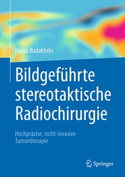 Bildgeführte stereotaktische Radiochirurgie von Badakhshi,  Harun
