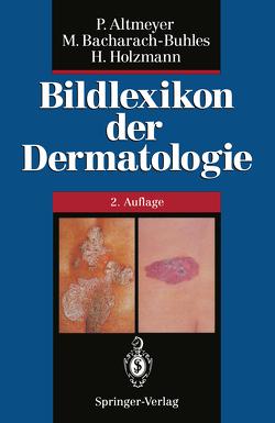 Bildlexikon der Dermatologie von Altmeyer,  Peter, Bacharach-Buhles,  Martina, Buhles,  N., Holzmann,  Hans