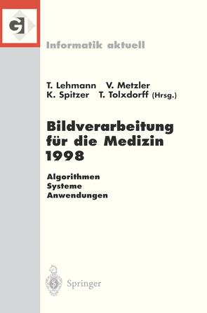 Bildverarbeitung für die Medizin 1998 von Lehmann,  Thomas, Metzler,  Volker, Spitzer,  Klaus, Tolxdorff,  Thomas