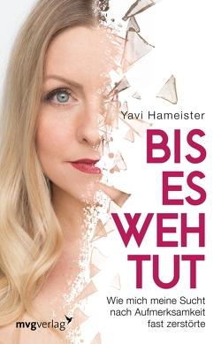 Bis es wehtut von Hameister,  Yavi
