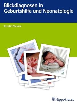 Blickdiagnosen in Geburtshilfe und Neonatologie von Altstaedt,  Julia, Butzheinen,  Ralf, Jäckle,  Karin, Schroth,  Sandra, Steiner,  Kerstin