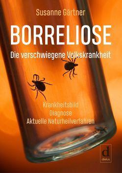 Borreliose – Die verschwiegene Volkskrankheit von Gärtner,  Susanne