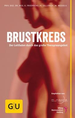 Brustkrebs von Friedrichs,  Kay, Oellerich,  Heike, Wessels,  Miriam