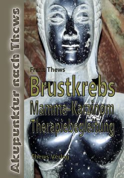 Brustkrebs – Mamma-Karzinom von Thews,  Franz