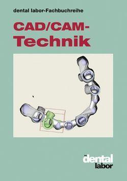 CAD/CAM-Technik