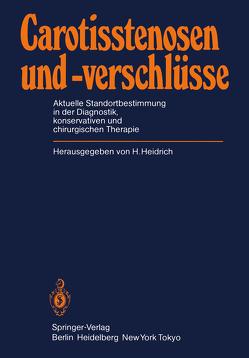 Carotisstenosen und -verschlüsse von Heidrich,  H.