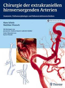 Chirurgie der extrakraniellen hirnversorgenden Arterien von Scholz,  Hans, Wunsch,  Matthias