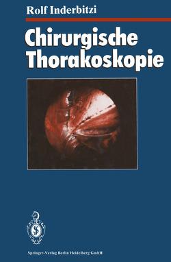 Chirurgische Thorakoskopie von Althaus,  U., Boutin,  C., Inderbitzi,  Rolf Gilbert Carl