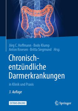 Chronisch-entzündliche Darmerkrankungen von Hoffmann,  Jörg C., Klump,  Bodo, Kroesen,  Anton, Siegmund,  Britta