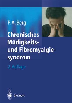 Chronisches Müdigkeits- und Fibromyalgiesyndrom von Berg,  Peter A.