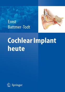 Cochlear Implant heute von Battmer,  Rolf-Dieter, Ernst,  Arne, Todt,  Ingo