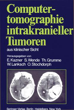 Computertomographie intrakranieller Tumoren aus klinischer Sicht von Bradac,  G.B., Büll,  U., Fahlbusch,  R., Grumme,  R., Grumme,  T., Kazner,  E., Kretzschmar,  K., Lanksch,  W., Meese,  W., Schramm,  J., Steinhoff,  H., Stochdorph,  O., Wende,  S.