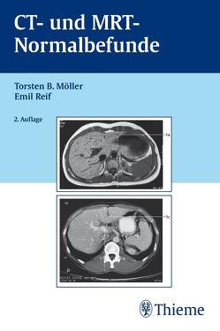 CT und MRT Normalbefunde von Möller,  Torsten Bert, Reif,  Emil
