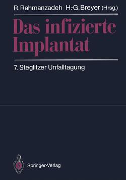 Das infizierte Implantat von Breyer,  H.-G., Rahmanzadeh,  R.